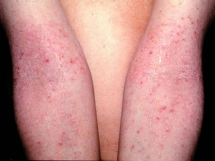 Проверенные народные рецепты от аллергического дерматита