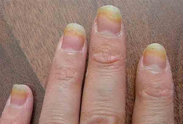 Ногтевой грибок — лечение народными средствами