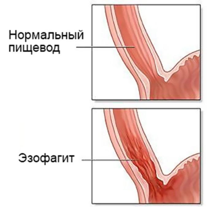 Диета При Эрозивном Эзофагите Пищевода
