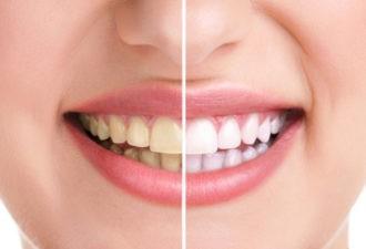 Какотбелить зубы самостоятельно