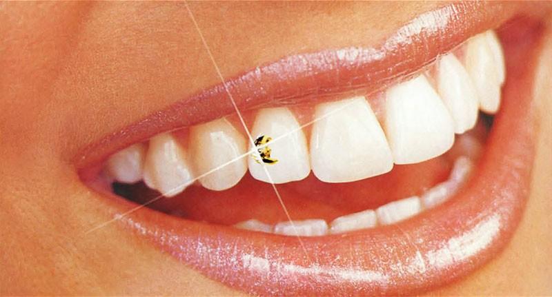 Зубные украшения