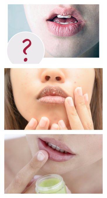 Сохнут губы: как справиться с проблемой сухих губ
