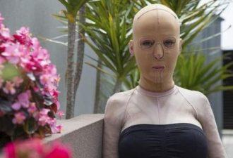 Жизнь без лица закончена: австралийка сняла маску, которую носила 2,5 года