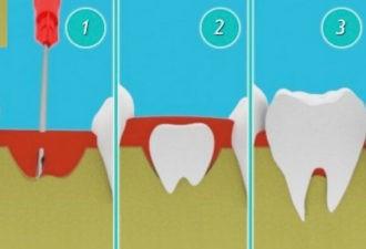 Новейшая технология позволит выращивать собственные зубы всего за 9 недель!