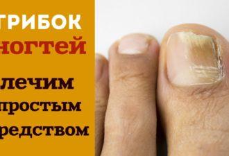 Это простое 2-компонентное средство навсегда избавит вас от грибка ногтей