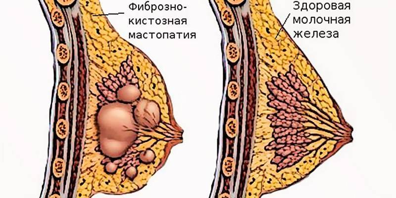 Боль в груди и выделения из соска – причины появления