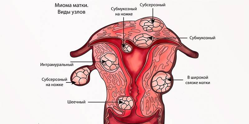 Субмукозная миома матки: признаки и лечение