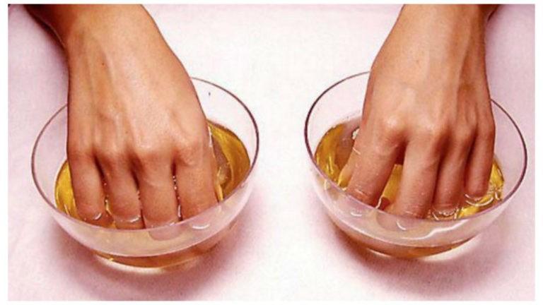Обычный йод спасет ваши ногти от грибка.