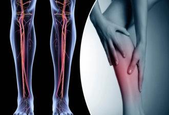 Предотвратить варикозное расширение вен или улучшить кровообращение в ногах.