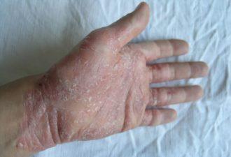 Виды псориаза и лечение народными средствами