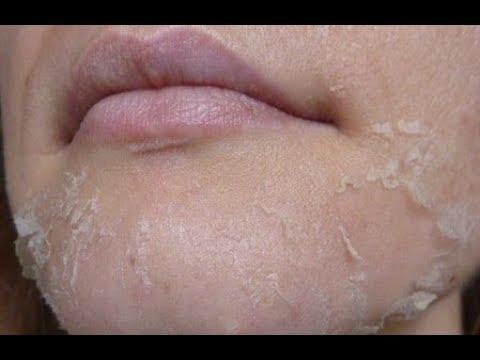 Кальция хлорид идеально очистит вашу кожу.