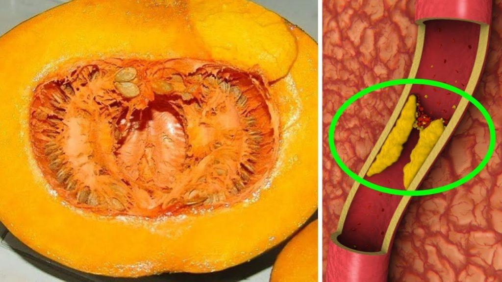 Тыква поможет в борьбе с гипертонией, холестирином и высоким уровнем сахара