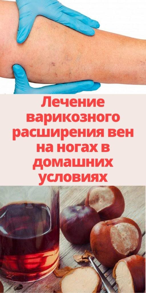 Лечение варикозного расширения вен на ногах в домашних условиях
