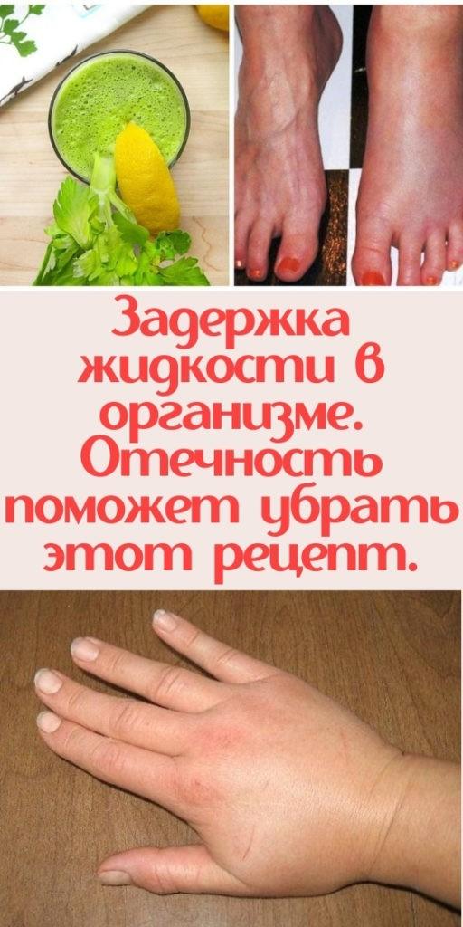 Задержка жидкости в организме. Отечность поможет убрать этот рецепт.